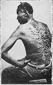 Slavery And The Making Of America  The Slave Experience Living  Pbs Photograph Of The Scars Of Whipping